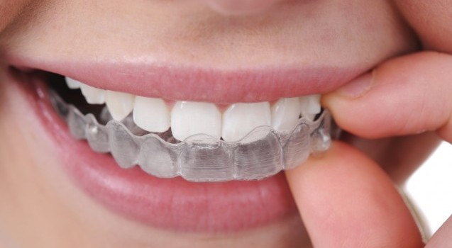 Invisible Aligners Cost in Karachi at Affordable | Rehan