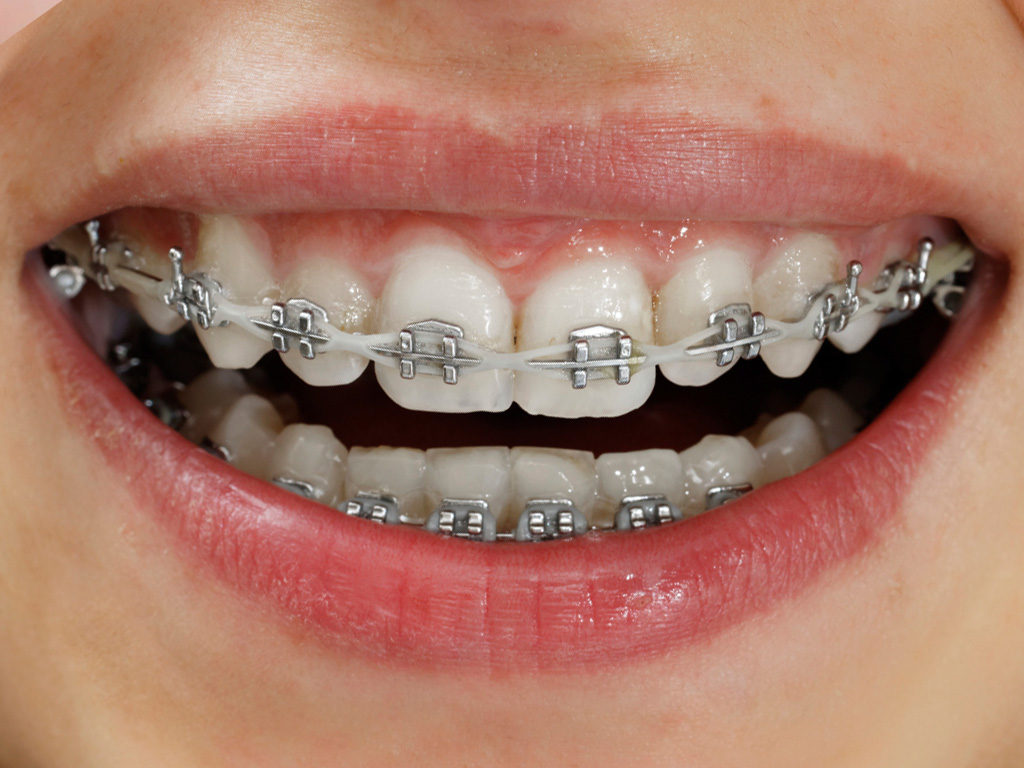 Dental Rubber Bands And Elastics For Braces Rehan Dental Surgery